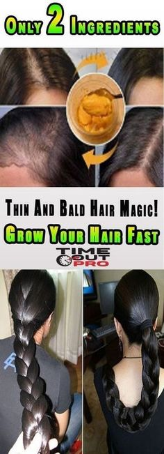 Thin And Bald Hair Magic! Grow Your Hair Fast With Only 2 Ingredients: If you want to have long thick and strong hair, but it grows slowly, you should without any doubt try this amazing natural ing… (Diy Hair Thickener) Hair Mask For Growth, Hair Remedies For Growth, Hair Growth Tips, Hair Loss Remedies, Fast Hair Growth, Hair Growth Recipes, Natural Treatments, Natural Remedies, Style Audacieux