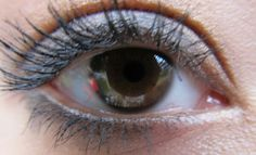 I have Distichiasis which is two rows of eyelashes and a bunch of other wierd stuff. Like Sarah Taylor :)