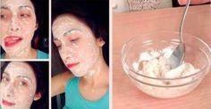 Despídete de las manchas en tu rostro, el acné y las cicatrices con esta sorprenderte mascarilla, totalmente natural... Pruebala!!!