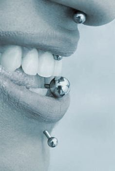 Oral Piercings — What you should know!! In today's society, we see a lot of body art being displayed on people's faces. We often see eyebrow rings, nose rings, and cheek piercings. As dental professionals at Szmanda Dental Center, we are more concerned with the piercing site of the area around the lips, the lips themselves and the tongue.