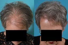 FUE Hair Transplant | Rawnsley Hair Restoration #HairRestoration