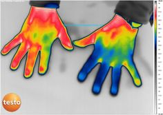 Infrared thermography of human male's hands with blood circulation's anomaly