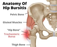 Hip Bursitis Exercises, Hip Strengthening Exercises, Bursitis Hip, Osteoarthritis Hip, Stretching Exercises, Stretches, Piriformis Muscle, Gluteal Muscles, Hip Muscles
