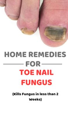 Toe Nail fungus can be irritating and frustrating as it keeps progressing. Here are the 12 Simple home remedies for toe Nail fungus that is super effective. Fungal Nail Treatment, Skin Treatments, Home Remedies, Health Remedies, Natural Remedies, Toe Fungus Remedies, Black Toe Nails, Healthy Nails