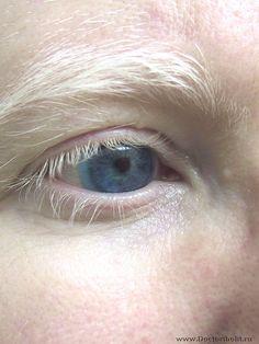 человек альбинос: 20 тыс изображений найдено в Яндекс.Картинках