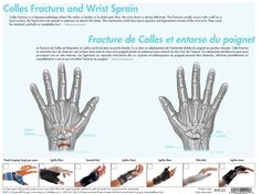 Colles Fracture and Wrist Pain | Sports Injuries & Orthopedic Supports | www.erp.ca