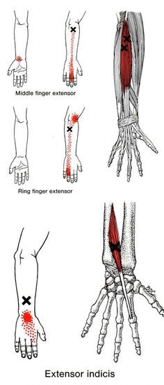 Extensor Digitorum | The Trigger Point & Referred Pain Guide