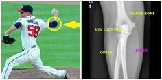 Baseball Injuries, Atlanta Braves, Sport Casual, Surgery, Funny, Ha Ha, Hilarious