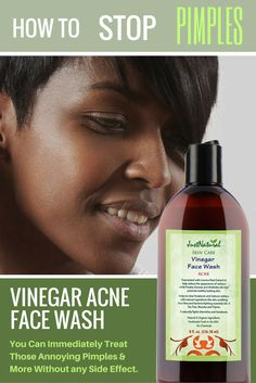 Acne Vinegar Face Wash / It removes the excess oil from your skin that can cause breakouts by cleaning pores and removing dirt and bacteria to reveal a clean, fresh healthy looking face. Andiroba, Basil, and Manuka essential oils fight blemishes and help prevent new ones from forming. Licorice Root and Aloe Vera extracts have a soothing effect and helps to calm irritation and redness. Immediately stops the breakout or pimple from getting bigger and helps it to disappear.