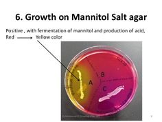 Gram-Positive bacteria on Mannitol-Salt Agar plate
