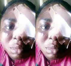 Woman Battered By 'Sister's' Husband Cries Out   A 27yrs old woman Latifat Adeyemi who was allegedly battered by her uncle-in-law Rasak Alabi at Aga Ikorodu area of Lagos has cried out for justice. Last Friday Mr. Alabi allegedly hit the lady with a spanner on her head and face. The picture of the injured circulated online after a family friend Francis Ibirinde shared it on social media. In a telephone interview with The Nation Adeyemi said her aunts husband attacked her at their 3 Ile-Ewe…