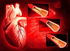Profit on stents ranges from 270% to 1,000% - Times of India