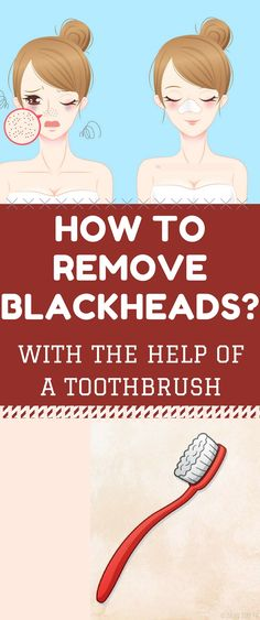 How to Remove Blackheads with the Help of a Toothbrus. Check this! How to Remove Blackheads with the Help of a Toothbrus. Check this! Blackheads On Cheeks, Get Rid Of Blackheads, Get Rid Of Warts, How To Clear Blackheads, Healthy Tips, Healthy Skin, Healthy Lifestyle Tips, Healthy Facts, Healthy Beauty