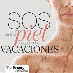 Tips para recuperar tu piel después de las vacaciones.