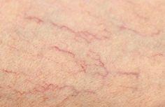 Notícias: Remédios para as veias de aranhas nas pernas