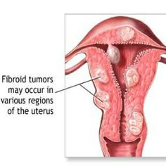 Home Remedies - Natural Remedies - Home Remedy - http://www.natural-homeremedies.org/blog/natural-cure-for-fibroids-in-uterus/