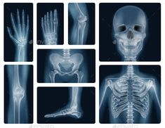 Buy Human Bones Realistic X-Ray Shots by macrovector on GraphicRiver. Realistic x-ray shots of human bones of skull pelvis thorax knee and limbs isolated vector illustration Linkedin Background, Arte Robot, Human Skeleton, The Doctor, Doctor Gifts, Borders For Paper, Fun Activities For Kids, Science And Nature, Dramatic Play