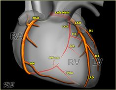 Normal and Anomalous Coronary Arteries: Dual Source CT in Cardiothoracic Imaging Cath Lab Nurse, Coronary Circulation, Arteries Anatomy, Cardiac Sonography, Interventional Radiology, Heart Anatomy, Cardiac Nursing, Physiology, Business Intelligence