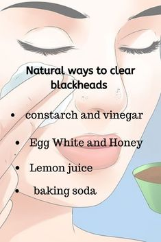 Some natural ways to clean blackheads from your skin. Which home remedies are best for your skin? Comment below & Let us know Blackhead Remedies, Diy Blackhead Remover, Remove Blackheads From Nose, Blackheads On Nose, Veronica, Hair Scrub, Healthy Skin Tips, Clear Skin Tips, Beauty