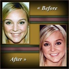 Look at how happy this young woman looks now! Dr. Oppenheim fixed the missing tooth problem and she is no longer embarrassed to smile!    http://signaturesmiles.com/smile-gallery/#.UI7Vw4YhGSo