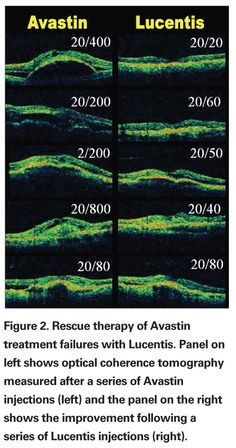 Comparing Avastin and Lucentis (two Anti-VEGF) therapies used to treat Wet AMD.