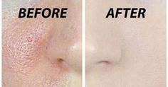 We all have millions of skin pores on our skin however they are not visible with naked eye however as your grow older or sometimes because of other aspects likewise pores become noticeable on your …