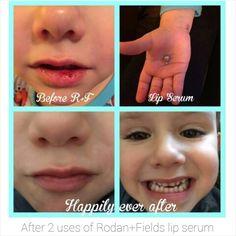Happy lips.... Rodan+Fields Lip Serum heals dry, sore and cracked lips!! www.laurasacharnoski.myrandf.com