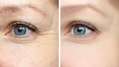 Woman face, eye wrinkles before and after treatment - the result of rejuvenating cosmetological procedures of biorevitalization, botox and pigment spots removal - Buy this stock photo and explore similar images at Adobe Stock Under Eye Wrinkles, Prevent Wrinkles, Peau D'orange, Moslem, Cosmetic Clinic, Eyelid Surgery, Facial, Eye Lift, Les Rides