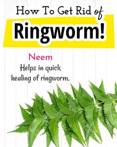 How to Get Rid of Ringworm? Home Remedies for Ringworm How to Get Rid of Ringworm? Home Remedies for Ringworm Get Rid Of Ringworm, Home Remedies For Ringworm, Natural Home Remedies, Hair Rubber Bands, Lemongrass Essential Oil, Neem Oil, Young Living Essential Oils, Insta Makeup