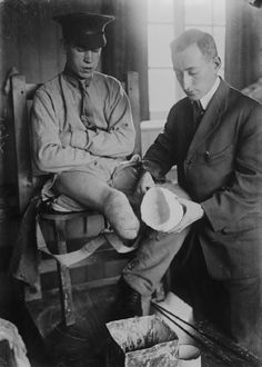 A doctor takes a plaster cast of the remainder of an amputee's right leg at Queen Mary's Hospital, Roehampton, Surrey, in preparation for fitting a specially made artificial limb.