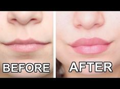 How To Get Bigger Lips Naturally: 5 Tips to Make Your Lips Fuller How To Get Bigger Lips Naturally: 5 Tips to Make Your Lips FullerMost of the women just envy the looks of some beauty icons with plump and l Naturally Bigger Lips, Make Lips Bigger, How To Get Bigger, Diy Lip Plumper, Natural Lip Plumper, Big Lips Natural, Lip Plumber, Large Lips, Lip Tips