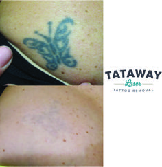 Do you or anyone you know have a bad tattoo check out the for Tattoo removal lexington