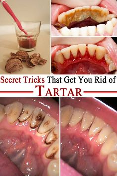 We propose 4 ingenious methods to easily and efficiently remove tartar at home! If you hate going to the dentist here& what you can do! Teeth Health, Healthy Teeth, Dental Health, Oral Health, Health And Wellness, Gum Health, Dental Hygiene, Remedies For Tooth Ache, Teeth Care