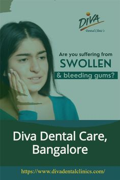 Also, be gentle when flossing to avoid inflamed gums. Carefully slide the floss between your teeth rather than forcing it down and causing damage to your gums. Rinse regularly. Rinsing your mouth helps remove food particles and debris, as well as the carbohydrates that cause plaque and can lead to gum disease. #gingivitis #gingivitis_treatment Best Dentist, Dentist In, Swollen Gum, Dental Emergency, Dental Care, Clinic, Diva, How To Remove, Dental Caps