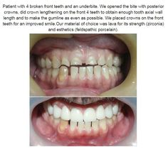 #beforeandafter #smile #happypatient
