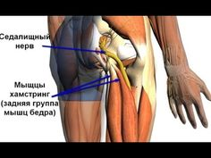 Как быстро снять острые боли при защемлении седалищного нерва