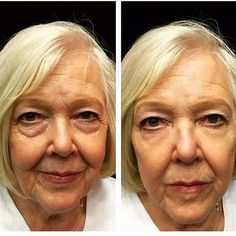 INSTANTLY AGELESS!!!! Under eye bags, fine lines, wrinkles, dark circles? Instantly ageless can be applied under or over your make up. Order now link in Bio. #undereyebags #finelines #wrinkles #grandgroup  Http://joinrasheed.com