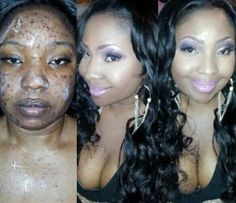 Wow! Look At These Before And After Makeup Photos