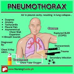 College Nursing, Nursing School Notes, Nursing Tips, Icu Nursing, Respiratory Therapy, Respiratory System, Medical Surgical Nursing, Family Nurse Practitioner, Medical Laboratory Science