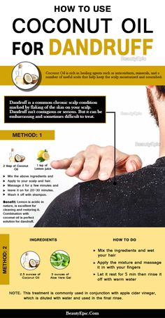 How to remove dandruff with coconut oil? Coconut oil against dandruff: coconut oil in … – dandruff remedy Coconut Oil For Dandruff, Oils For Dandruff, Home Remedies For Dandruff, Hair Dandruff, Coconut Oil For Acne, Natural Coconut Oil, Coconut Oil Uses, Benefits Of Coconut Oil, Coconut Oil Hair Treatment