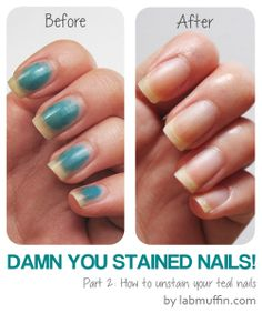 Damn You Stained Nails! Pt How to remove stains - Lab Muffin Mood Nail Polish Gel, Nail Polish Stain, Dark Nail Polish, Dark Nails, Nail Polish Designs, Red Nail, Nail Design, Teal Nails, Manicure Colors