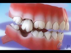 Maloclusión - Tipos de maloclusiones dentales © - YouTube