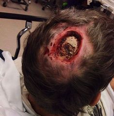 DONT DO METH! Meth addict picked a sore all the way to the bone. - absolutely shocking, if this isn't a wake up call not to use Meth, I don't know what is! Trauma, Medical Conditions, Human Body, It Hurts, Weird, Shit Happens, Skull, Strange Things, Mad Science
