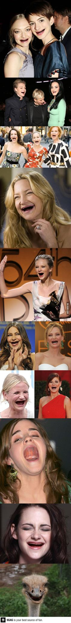 Actresses without teeth - for the love of all things holy, please take care of your teeth, folks.