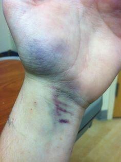 Bruising on hands