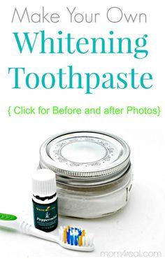 Make Your Own Tooth Whitening Paste with Before and After Photos at Mom 4 Real Blog