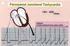 Paroxysmal Junctional Tachycardia: got it - non-life-threatening.