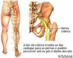 Tratamento para a dor no nervo ciático com a Quiropraxia.