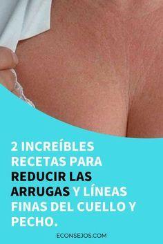 Eliminar arrugas cuello