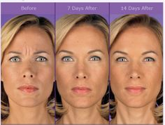 Keep looking your finest with face aerobics workouts, cheek exercises, eye exercises, double chin workouts. Use these anti-aging skin care regimens to keep looking younger and for natural beauty www.facelift-with. Anti Aging Skin Care, Natural Skin Care, Natural Beauty, Facial Esthetics, Under Eye Creases, Face Lift Exercises, Botox Before And After, Botox Cosmetic, Eye Wrinkle